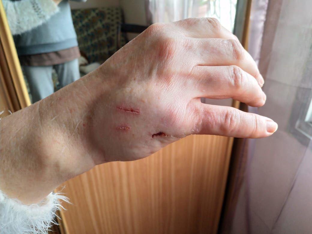 картинки разбитых женских рук продолжаем рассматривать ветку